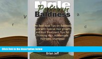 BEST PDF  Male Pattern Baldness: The Best Kept Tips on Baldness Cure with Special Hair growth and