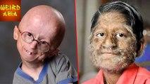 5 WEIRD Diseases ,  Weird Asia