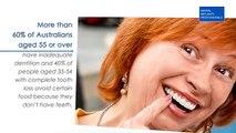 Benefits of Dental Implants in Sydney| Watch Now