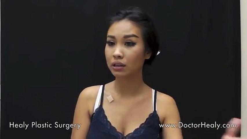 Breast Augmentation in Honolulu Hawaii _ Patient Review