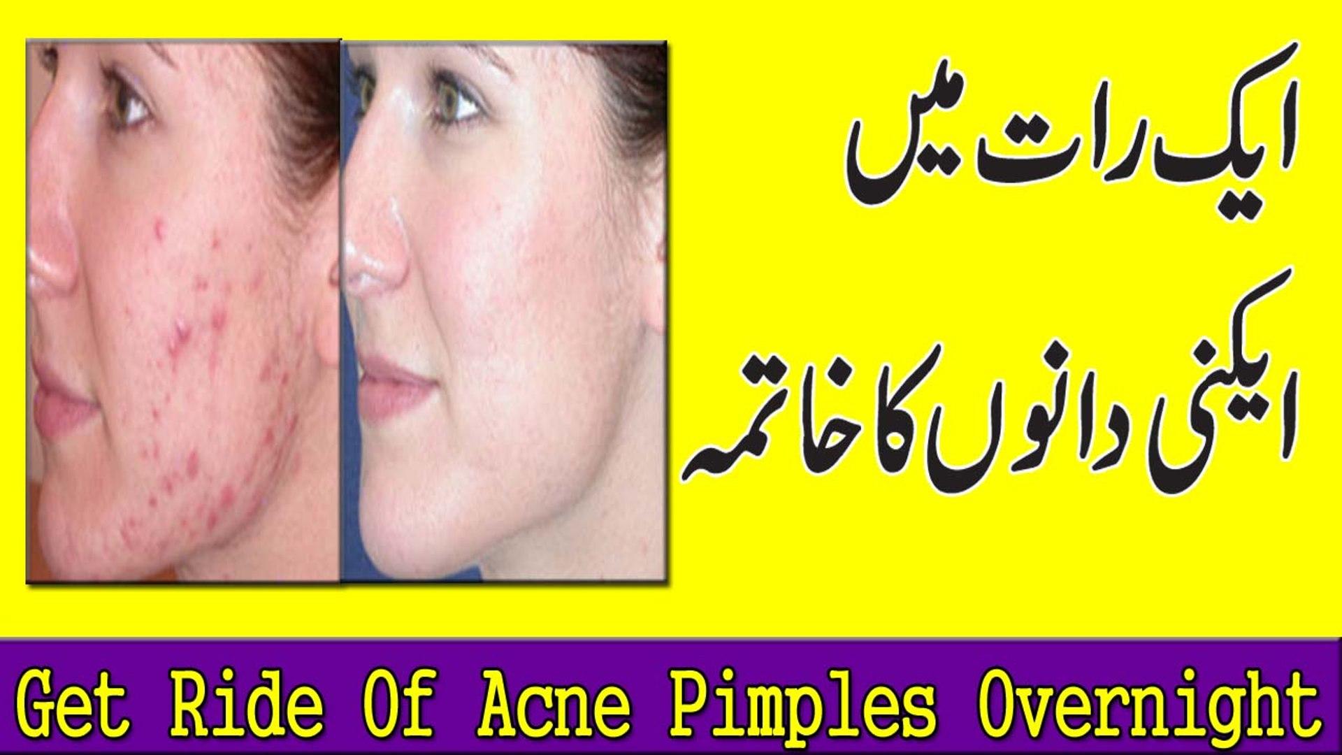 Remove Pimples Overnight Chehre K Danon Ka Ilaaj
