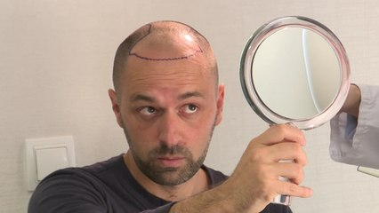 "El youtubero ""videópata"" que vuelve a tener pelo"
