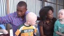 Rd congo, Intégration sociale des Albinos/les albinos se prennent en charge
