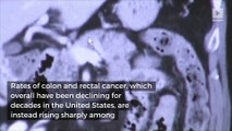 Colon and rectal cancers rates rising sharply among Gen X and millennials