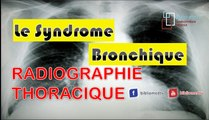 Radiographie du Thorax - Syndrome Bronchique