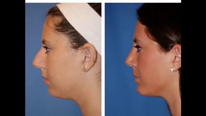 Trends in Facial Plastic Surgery