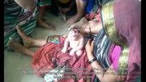 Ce bébé malformé rejeté par sa mère est maintenant vénéré comme un dieu hindou par les croyants
