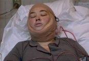 Miserable Mama June's Post-Surgery Meltdown Caught On Camera!