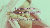 4 Semanas de Embarazo - Ecografía 4 Semanas de Gestación-J