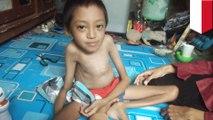 Anak laki-laki di Bandung menderita kelainan genetik tulang rapuh - TomoNews