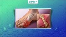 #موضوع: أعراض مرض النقرس