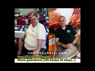 Obezite Cerrahisi Hastalarımız