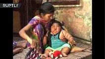 """""""Come como una niña de 10 años"""": La historia de una bebé de 8 meses que pesa 17 kilos"""