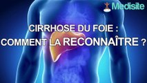 Cirrhose du foie : comment la reconnaître ?