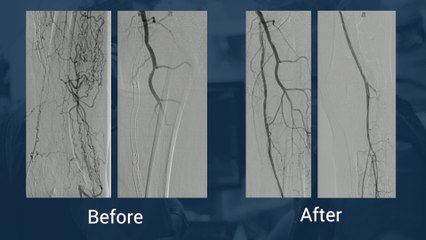 Long instent re-occlusion and P1-P2 occlusion