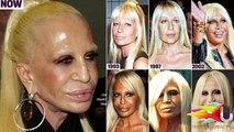 15 Extremely Shocking Plastic Surgery Disasters EVER !......http://www.dailymotion.com/video/x5m6p4d_love-make-the-people-helpless-mark-of-the-beast-al-law-new-world-order-antichrist-lust-sin-pope-fran_fun