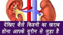 Symptoms of Liver fails   किडनी की दिक्कत आपके यूरीन से जुड़ी है   Boldsky
