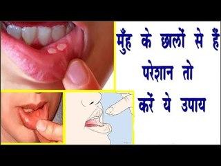 मुँह के छालों से है परेशान तो करें ये उपाय || Remedy To Treat Mouth Ulcer || Arogya India