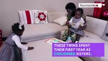 Previously conjoined sisters are now able to walk-DYhQ-dOYGdk