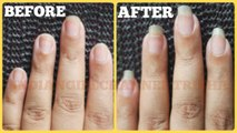 how to grow nails fast, long and strong-nail growth treatment-long nails tips