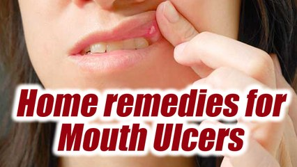 15 Amazing Ways As To How To Cure Mouth Ulcers Fast