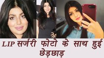 Ayesha Takia says her Lip surgery photos were MORPHED | FilmiBeat