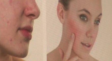 La rosácea, un mal de la piel controlable