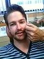 Un homme se fait retirer une aiguille de 12 centimètres de son visage