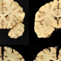 Football Players at Higher Risk for Brain Damage