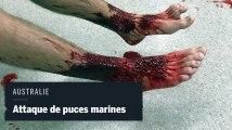 Un Australien attaqué jusqu'au sang par des puces marines
