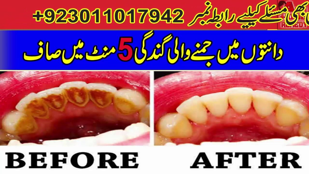 Dental Plaque Homemade Treatment In Just 5 Minutes Teeth