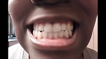 Warning Teeth Whitening Baking Soda And Lemon Bad Reion Before After The Mout Dailymotion Video