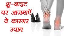 Shoe Bite Home Remedies | जूते के काटने पर करें ये उपाय | Foot Blister's Remedies | BoldSky