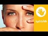 طريقة فعالة لعلاج انتفاخ العينين | وصفة طبيعية لعلاج انتفاخ العينين | هاندميد
