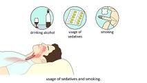 Obstructive Sleep Apnea Syndrome (OSAS) - Causes and treatment