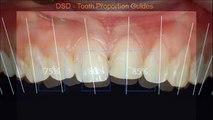Frente restauracion dientes cerrar las brechas entre la restauración de dientes de los dientes anteriores