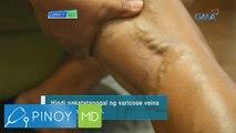 Pinoy MD: Chamomile oil, panlunas nga ba sa varicose veins?