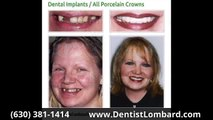Veneers Before And After Glen Ellyn IL 630-381-1414 Glen Ellyn Before & After Dental Implants