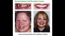 Veneers Before And After Downers Grove IL 630-381-1414 Downers Grove Before & After Dental Implants