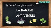 Le remède de grand-mère anti-verrues : la banane
