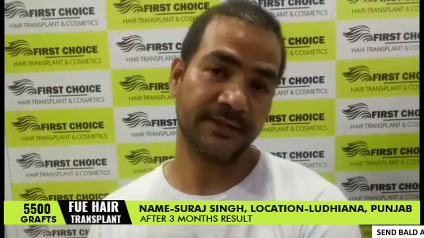Hair Transplant in Ludhiana -Patient's Review about his results after 3  months of surgery