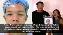 Rated K: Marlou's Surgery Transformation
