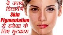 Skin Pigmentation से हमेशा के लिए छुटकारा दिलायेंगे ये उपाय   Home Remedies   Boldsky