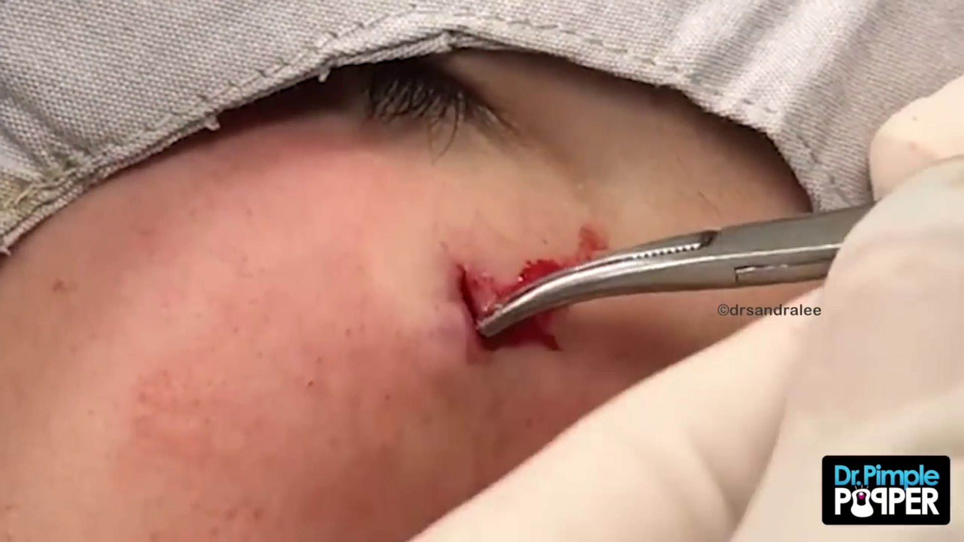 The Cyst that GOT Dr Pimple Popper!