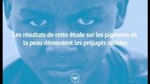 Les résultats de cette étude sur les pigments de la peau démontent les préjugés racistes
