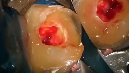 Kanal tedavisi nasıl yapılır ?