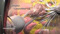 Breast Cancer Surgery Hospitals & Coronary Artery Bypass Graft Surgery India