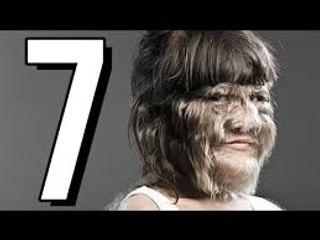 7 wyjątkowo dziwnych i przerażających CHORÓB  DRASTYCZNE