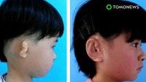 Hebat! Kini ilmuwan Cina dapat tumbuhkan telinga - TomoNews