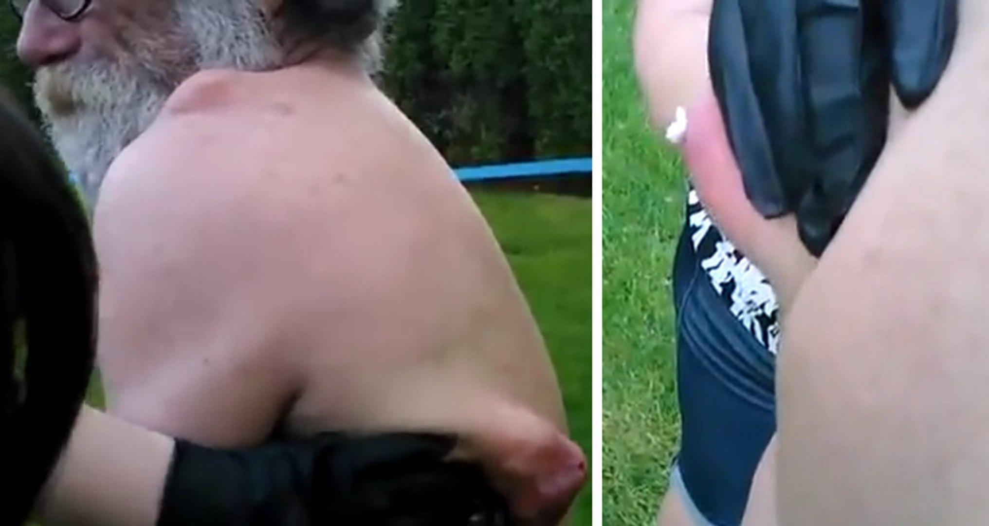 Une femme perce le plus gros bouton au monde dans le dos d ...